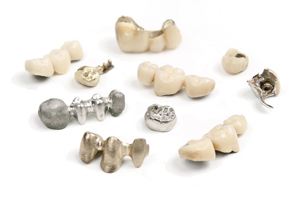 couronnes-dentaires-metal-ceramique-porcelaine-dentalam france