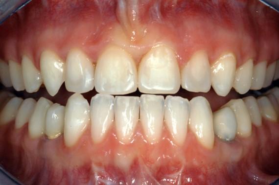 dents-sensibles dentalam dentiste france