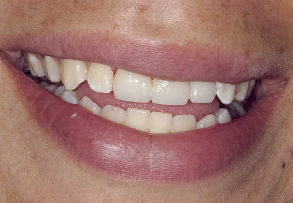 PONT TRADITIONNEL dentalam dentiste france