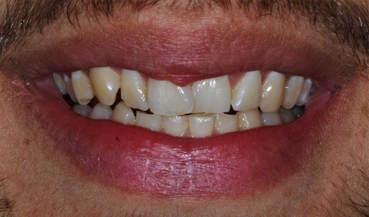 maladie parodontale dentalam dentiste france