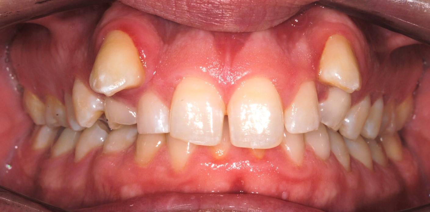 Traitement orthodontique dentalam france