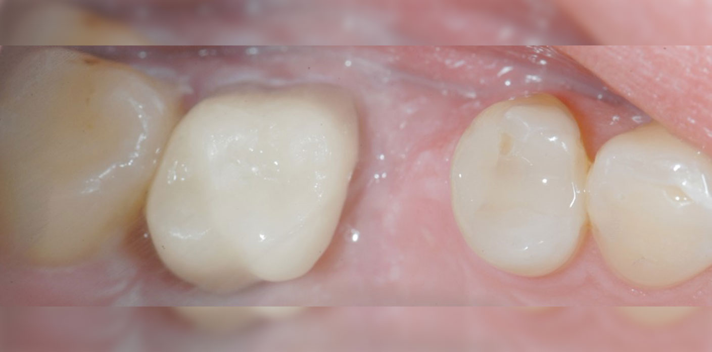 couronne-dentalam-dentiste-france