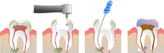 dévitalisation dentalam dentiste france