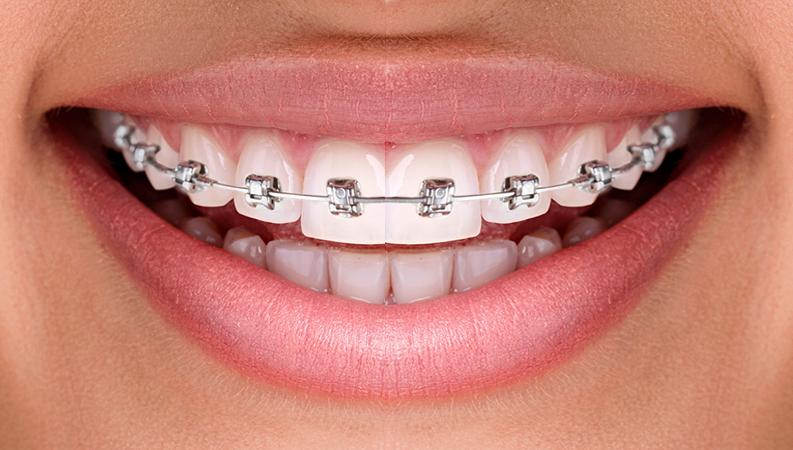 orthodontie adulte dentalam france