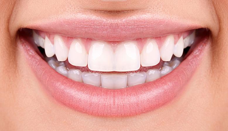 facette dentaire dentalam france