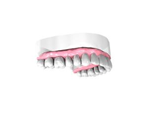 Couronne-dentaire-sur-Implant